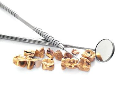 Denti d'oro: Valutazione e acquisto di lega dentale