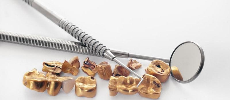 Denti d'oro e scarti di lavorazione odontoiatrica